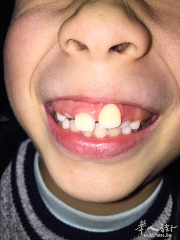 还没9周岁的孩子可以矫正牙齿吗?
