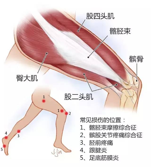上图为大腿解剖结构及常见损伤位置-奔跑的兄弟们,一定要小心这些