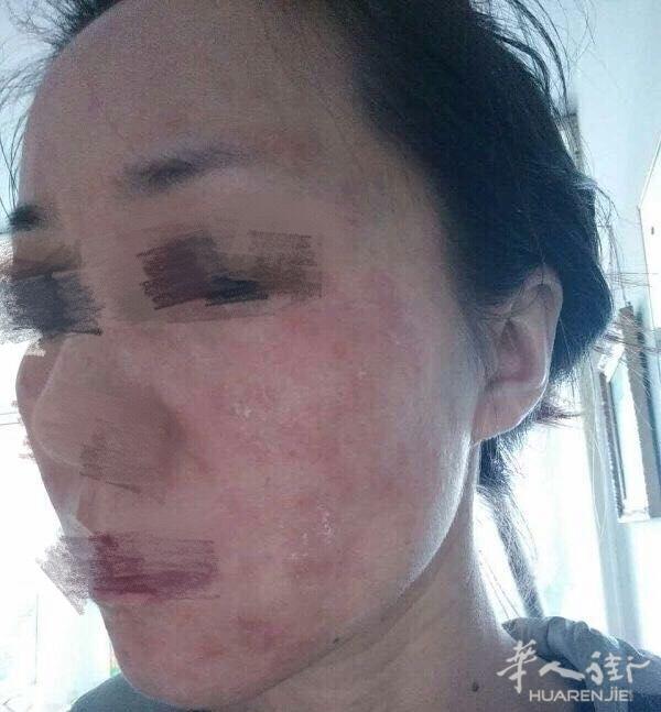面部过敏性皮炎和激素依赖性皮炎的症状是