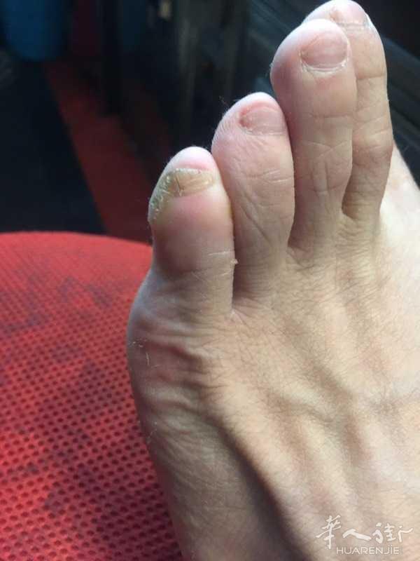 小脚趾不出指甲旁边还长肉,然后穿鞋子痛 能治