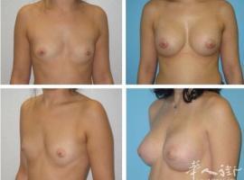 美美专业整形美容 减肥祛皱 法国著名整形博士 您值得信赖